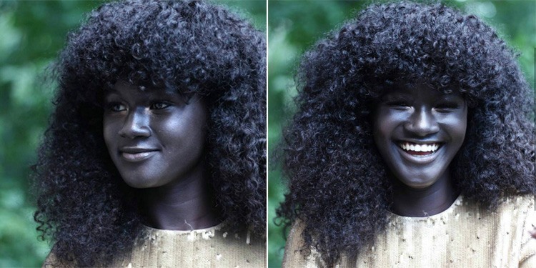 Dark Skinned Girl Bullied For Her Complexion Now A Successful Model