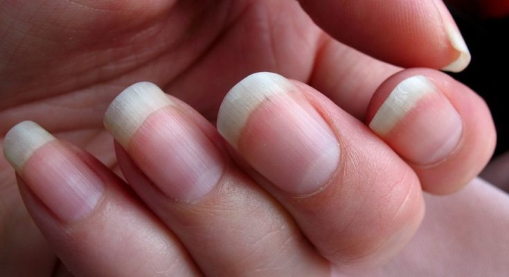 10 Nail Features And What They Say About Your Health