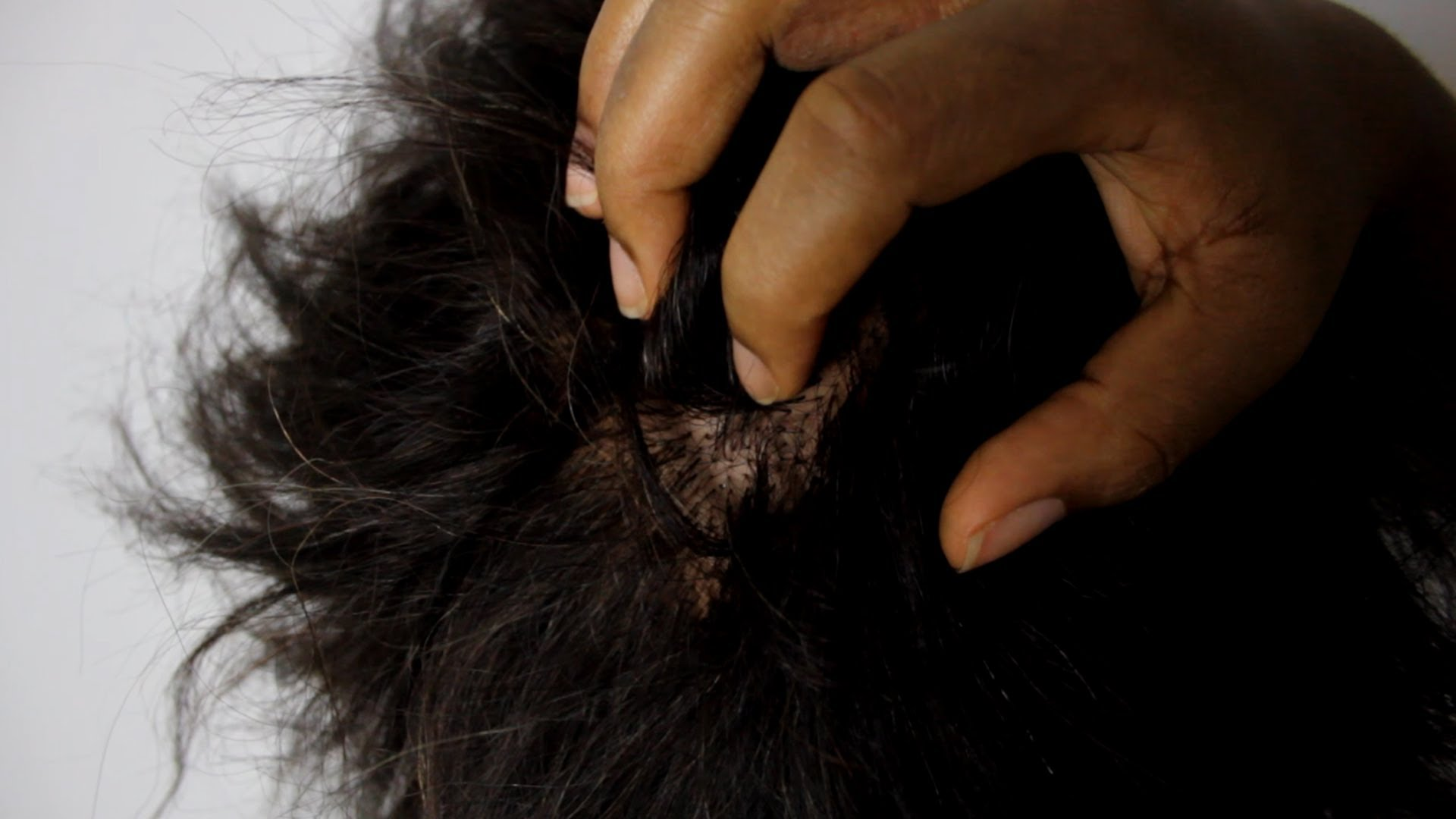 7 Natural Remedies For Itchy Dry Scalp